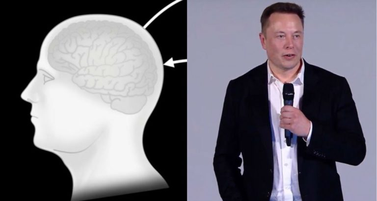 Neuralink Progress update summer 2020